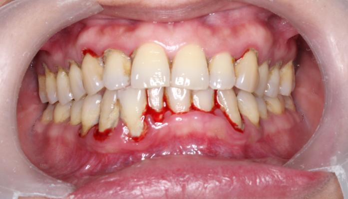 Gingivitis And Bleeding Gums