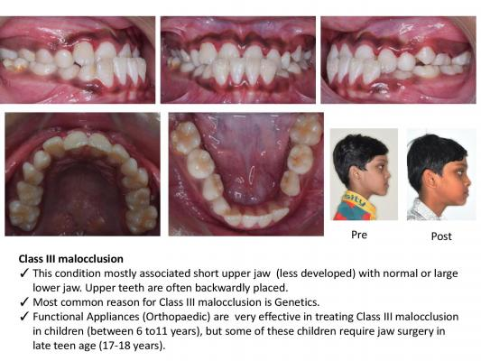 common dental diseasesngh