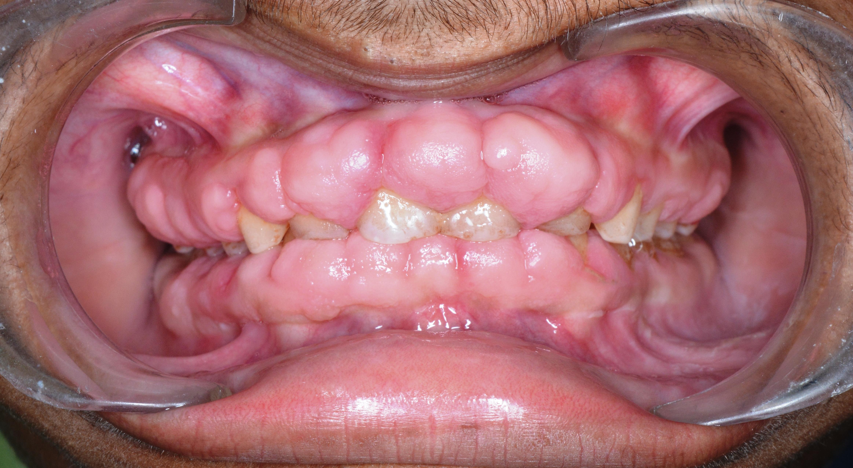 Medication & Gum Health
