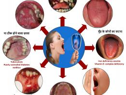 Impact of General health on oral health