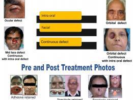 Rehabilitation of lost face